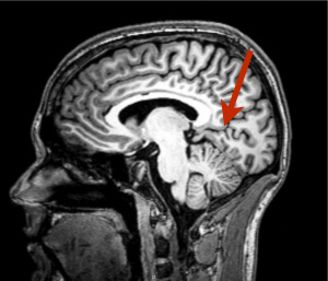 Brain region found that does absolutely nothing